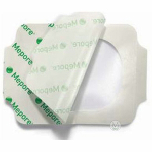 Molnlycke 273000 Mepore Transparent Film Dressing-50/Case